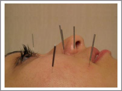 Последствия после иглоукалывания